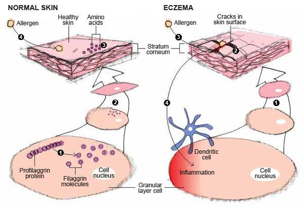 Eczema Diagram