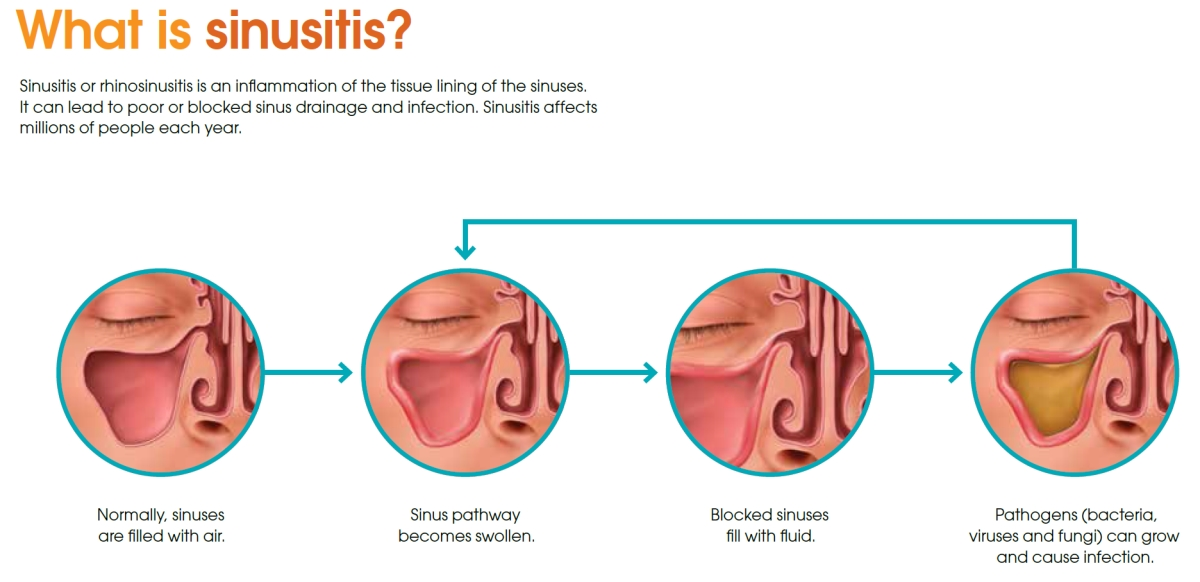 Natural sinusitis remedy & treatment via salt cave therapy